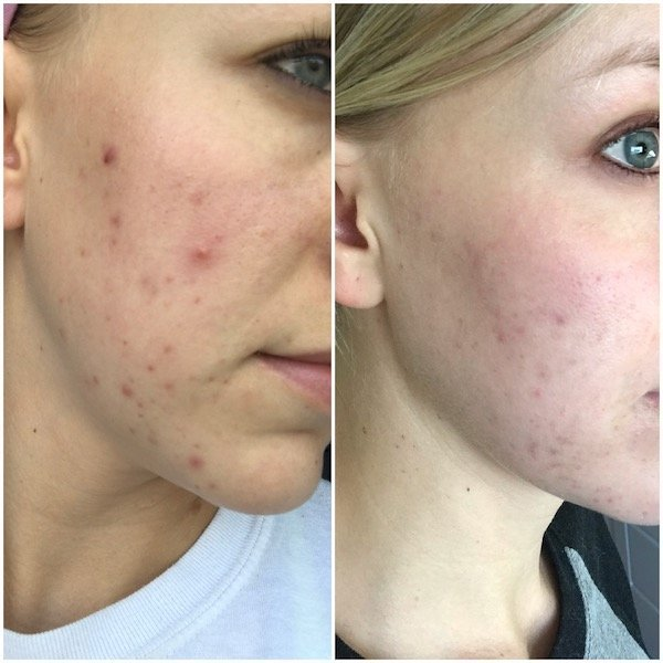 Beautycounter acne before and after